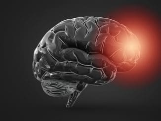 brain pandemic leaders